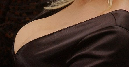 Court rules big breasts not a health problem for insurance