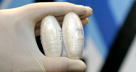 Drug mules arrested after belly x-rays