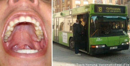 Uppsala man bloodied in biting bus driver beating