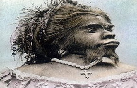 'Apewoman' to leave Norway for Mexico burial