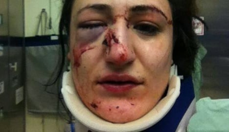 Munich officer broke woman's nose in cell