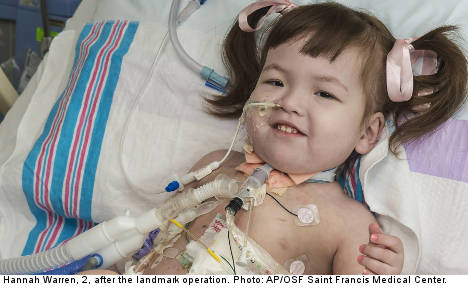 Two-year-old girl gets windpipe made from stem cells