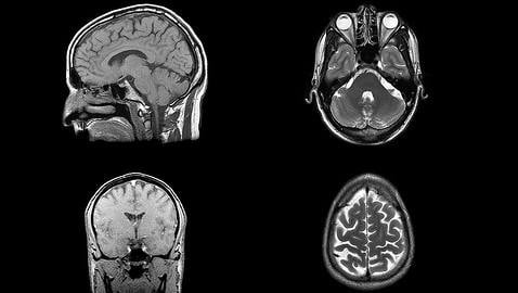 Norway study promises Alzheimer's cure