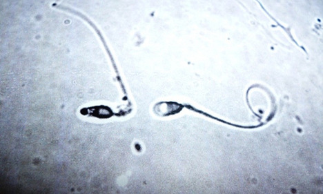 French lab produces first in vitro human sperm